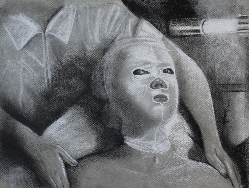 Tratamiento II. Serie Fatale, 2018   Tratamiento I. Series Fatale, 2018 Lápiz y pastel sobre papel   Pencil and pastel on paper 30,5 x 40,5 cm   12 x 16 in